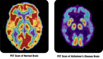 Image: PET scans showing the differences between a normal older adult\'s brain and the brain of an older adult afflicted with Alzheimer\'s disease (Photo courtesy of the NIH).