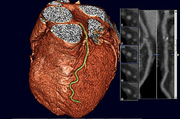 Image: A computed tomography (CT) scan of a healthy heart shows the coronary artery running down the front. A scan showing calcium buildup in the artery could trigger treatment (Photo courtesy of Vassilios Raptopoulo).