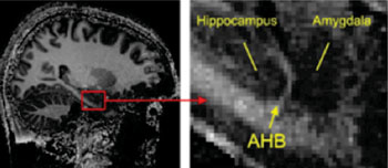 Image: The border between the important brain regions hippocampus and amygdala is visible in high-resolution magnetic resonance images (MRIs) as a fine, light strip (amygdala-hippocampal border [AHB]) (Photo courtesy of AG Ball, Universität Freiburg).