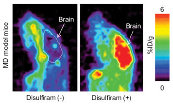 Image: Sagittal section of brain PET image at four hours after 64CuCl2 injection with disulfiram or D-penicillamine in MD model mice (Photo courtesy of the RIKEN Center for Life Science Technologies).