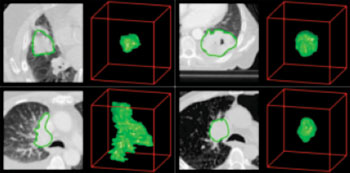 Image: Extracting radiomics data from CT scans of lung cancer patients. CT images with tumor contours left, three-dimensional visualizations on the right (Photo courtesy of the Maastricht University Medical Center).