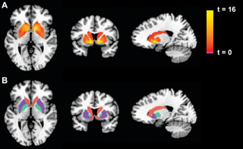 Image: Basal ganglia activation in the gambling task. Left to right: Axial, coronal, and transverse sections of the brain. The top row displays the activation for the Win-Lose contrast, for the pooled sample of chronic fatigue syndrome (CFS)+control subjects, as a statistical parametric map thresholded at a p < 0.05 corrected threshold and masked with the atlas-based anatomic regions of interest portrayed in the bottom row (putamen: purple; caudate: orange; globus pallidus: turquoise) (Photo courtesy of Plos one).