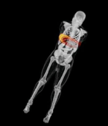 Image: Simulated 3D dose measurements of the abdomen/liver showing the dose imparted to the whole body. The dose is shown on a red and yellow color map, where yellow shows maximum dose (Photo courtesy of Duke Medicine).