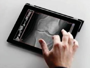 Image: The dicomPACSMobileView 1.6 mobile freedom image viewer (Photo courtesy of OR Technology).