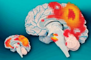 Image: Left, the brains of adults who had ADHD as children but no longer have it show synchronous activity between the posterior cingulate cortex (the larger red region) and the medial prefrontal cortex (smaller red region). Right, the brains of adults who continue to experience ADHD do not show this synchronous activity (Photo courtesy of Jose-Luis Olivares/MIT - based on images courtesy of the researchers).