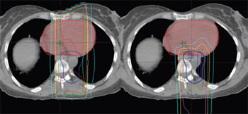 Image: An axial CT scan slice through the heart (red) of a patient with Hodgkin lymphoma involving the mediastinum. On the left is the X-ray plan and on the right is the proton plan. The dark blue line in both represents the tumor and target area for the radiation. The green line represents the volume of the body receiving 95% of the total prescribed dose of radiation, while the light blue line reflects the volume of the body receiving 10% of the total prescribed radiation dose. As is apparent, with conventional radiation (left), the X-rays deposit more radiation in the heart and breasts than the proton plan. In fact, the proton plan reduced the mean dose to the heart by more than 50% and the mean dose to the breast by 70%. For this reason, it's believed that Hodgkin lymphoma patients will have a much lower risk of heart disease and second malignancy with proton therapy than what's been observed in the past with conventional radiation therapy (Photo courtesy of the University of Florida Proton Therapy Institute).