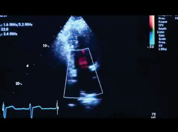 Image: The Vivid T8 cardiovascular ultrasound system offers quantitative features such as stress echo and transesophageal echocardiography (TEE) capabilities (Photo courtesy of GE Healthcare).