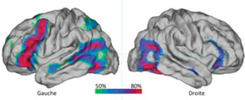 Image: Probability map of the brain regions activated in functional magnetic resonance imaging (fMRI) by a silent sentence production task in a group of 144 right-handed individuals. The color scale indicates the percentage of subjects with significant activation in this area during the task (green: 50%, blue: 65%, red: 80% or more). Note the high asymmetry of the map in favor of the left hemisphere) [Gauche = Left, Droite = Right] (Photo courtresy of Groupe d\'Imagerie Neurofonctionnelle, CNRS/CEA/Université de Bordeaux, France).