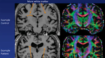 Image: Example of an MR image of a control subject's brain on top and a chronic fatigue brain on bottom. The ventricles are larger in the chronic fatigue syndrome patient, and there is less white matter. Abnormal microstructure is present on one side in the white matter in chronic fatigue syndrome (Photo courtesy of Michael Zeineh, Stanford University).