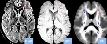 Image: The blue spots in the DTI brain scan on the right are nerve damage not seen in the two other standard (fluid attenuation inversion recovery [FLAIR] and susceptibility-weighted imaging [SWI]) MRI scans of the same brain (Photo courtesy of Doctors Imaging).