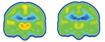 Image: Created by averaging PET scan data from chronic pain patients (left) and healthy controls (right), the images reveal higher levels of inflammation-associated translocator protein (orange/red) in the thalamus and other brain regions of chronic pain patients (Photo courtesy of Marco Loggia, Martinos Center for Biomedical Imaging, Massachusetts General Hospital).