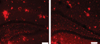 Image: Plaque abnormalities in the brain of a mouse (left), and brain tissue treated with MR imaging-guided focused ultrasound (right) (Photo courtesy of Kullervo Hynynen, Sunnybrook Research Institute).