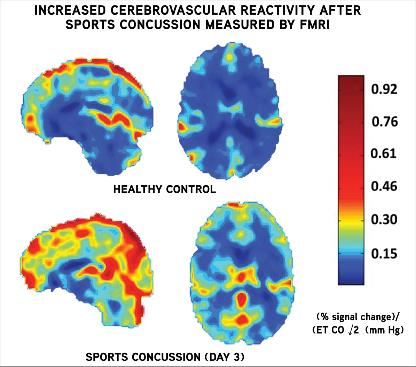 Image: Increased Cerebrovascular Reactivity after Sports Concussion Measured by FMRI (Photo courtesy of UPMC).