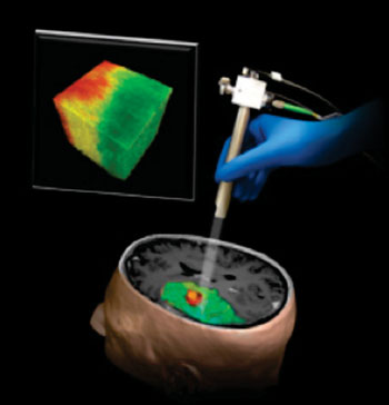 Image: Illustration of a new technique using Optical Coherence Tomography that could help surgeons differentiate a human brain tumor, red, from surrounding noncancerous tissue, green (Photo courtesy of  Carmen Kut, Jordina Rincon-Torroella, Xingde Li and Alfredo Quinones-Hinojosa/Johns Hopkins Medicine).