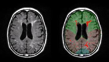 Image: The WMH in the brain of patient with Alzheimer's disease (Photo courtesy of Adam Brickman/ Columbia University).