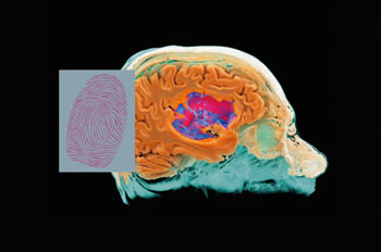Image: MR Fingerprinting (MRF) can be used to identify individual tissues and diseases quantitatively (Photo courtesy of Siemens Healthcare).